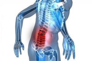 Bệnh đau lưng thoái hóa cột sống và cách chữa trị bằng bấm huyệt