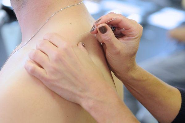 Điều trị đau vai gáy cổ